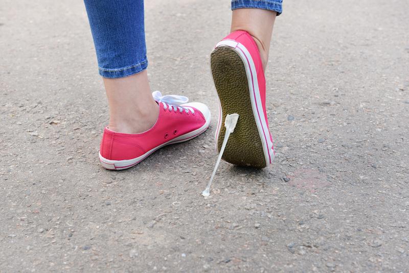 rimozione chewing gum